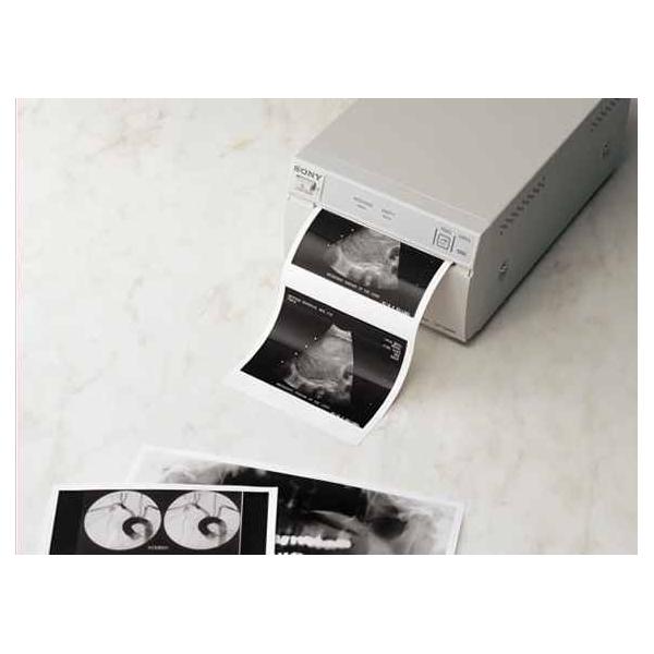 Giấy in nhiệt siêu âm - giấy in nhiệt cho máy siêu âm